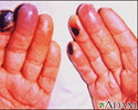 Cryoglobulinemia - of the fingers