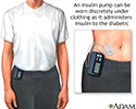 Insulin pump
