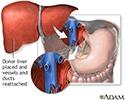 Donor liver attachment