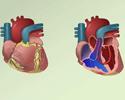 Congenital heart defect overview