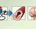 Hypertension treatments