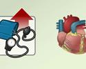 Cardiac hypertension hypertrophy