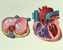 Valvular heart disease (VHD) - overview